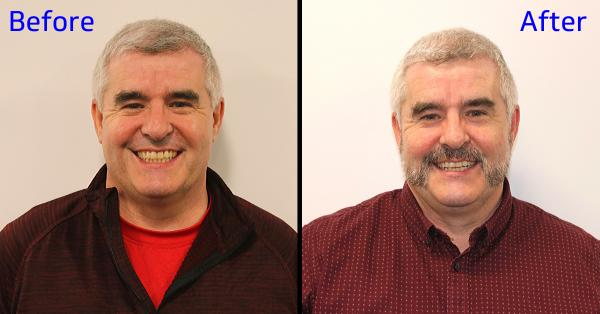 Before and after shots side by side of man without and with light facial hair.