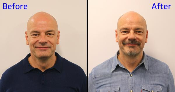 Before and after shots side by side of man without and with dark facial hair.